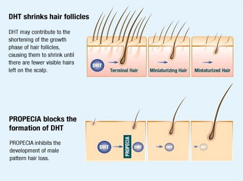 Medical treatment for hair loss - how it works