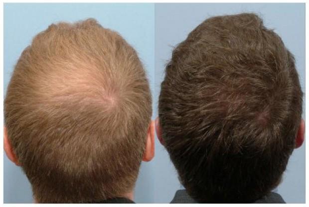 Propecia effect on skin