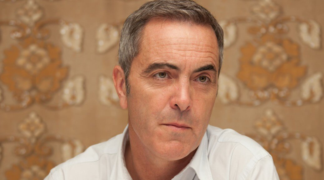 James Nesbitt hair transplant