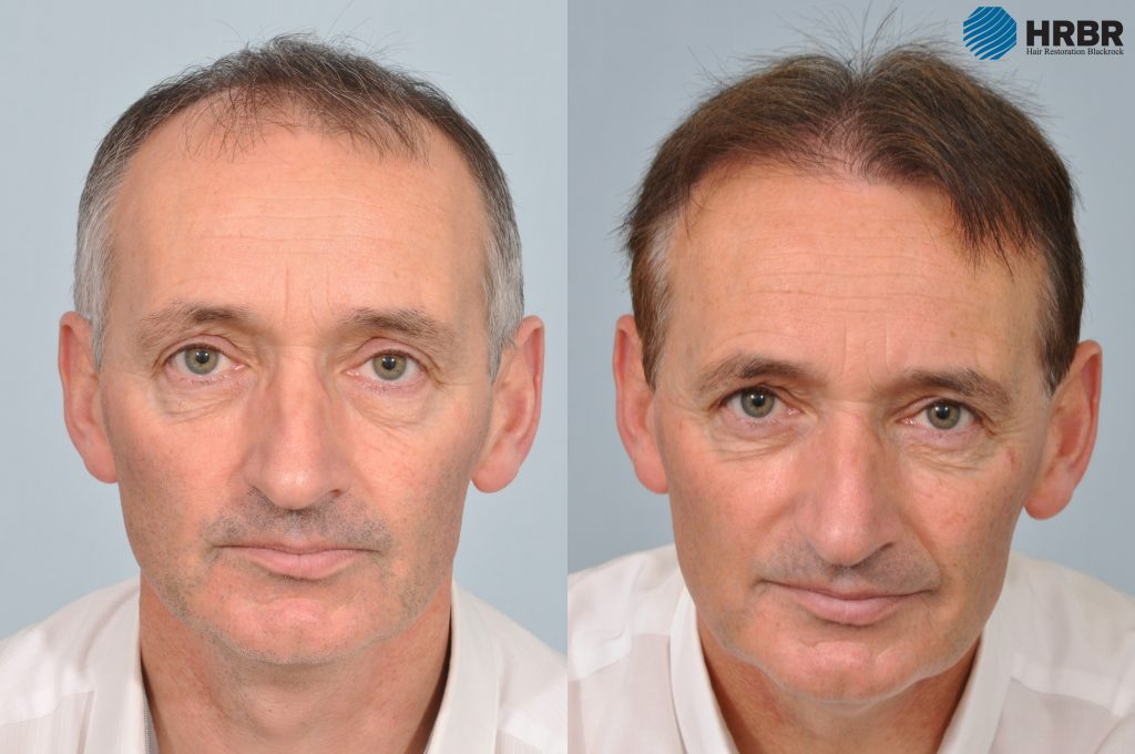 Pat Nevin hair transplant before after