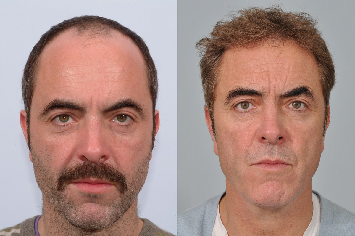 james nesbitt hair transplant at hrbr latest results