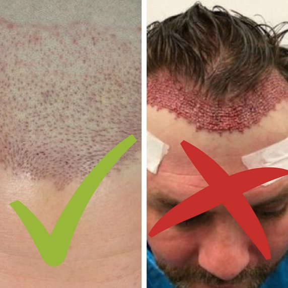how you should and shouldn't look after a hair transplant
