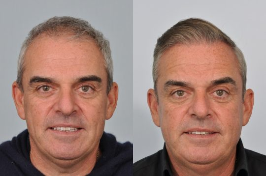 Paul McGinley hair transplant before and after